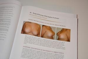 breast-augmentation-revision