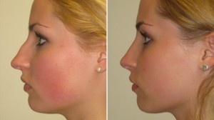 before-after-rhinoplasty-photo