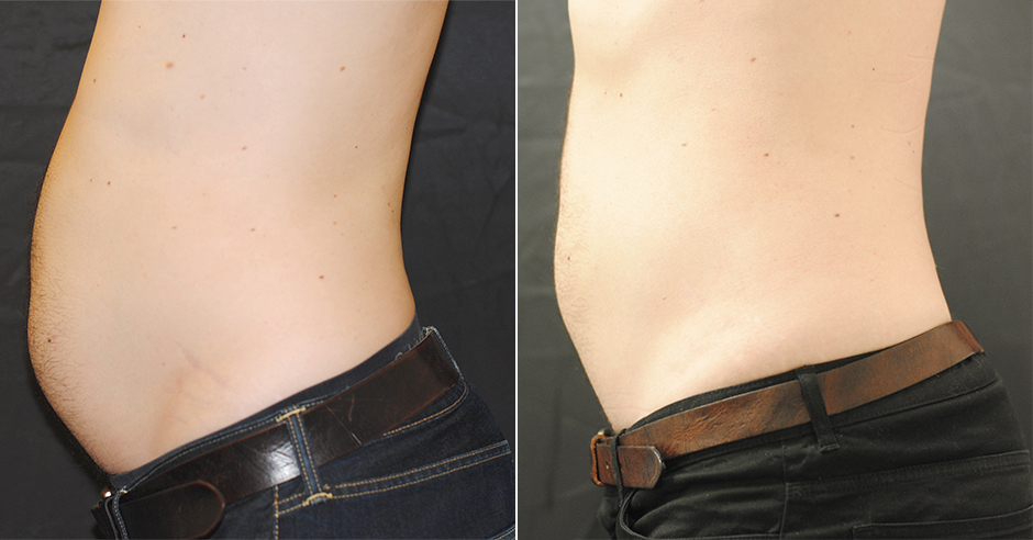CoolSculpting before and after photo
