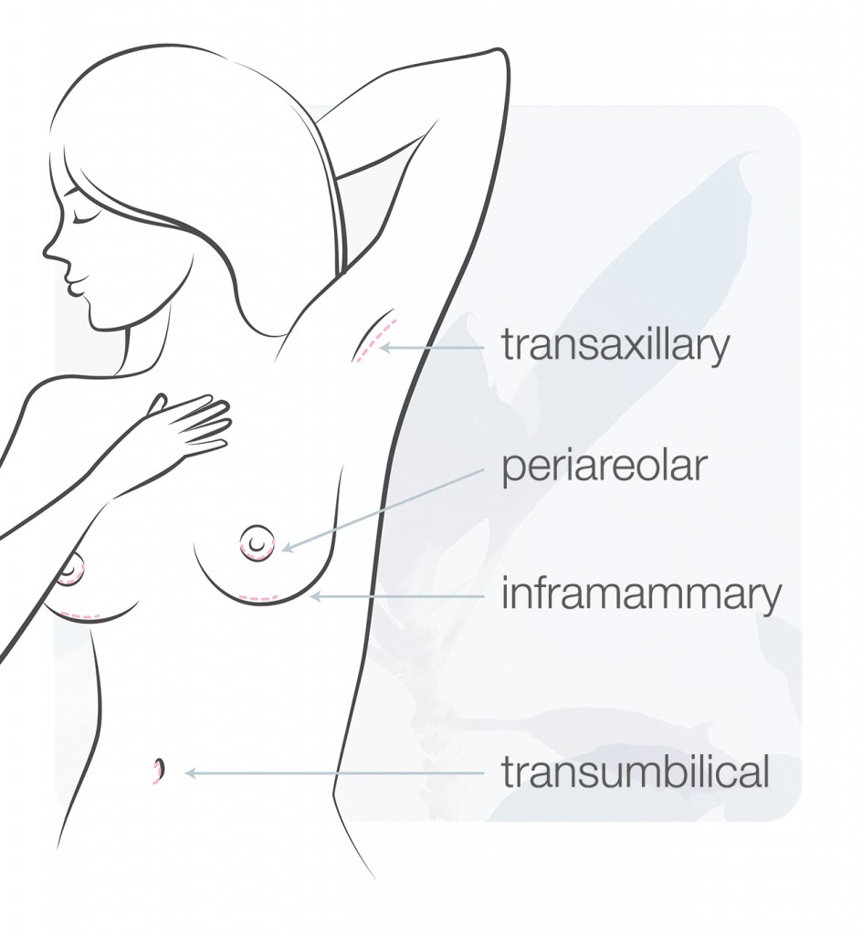 incision placement for breast augmentation