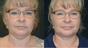 coolsculpting-for-double-chin