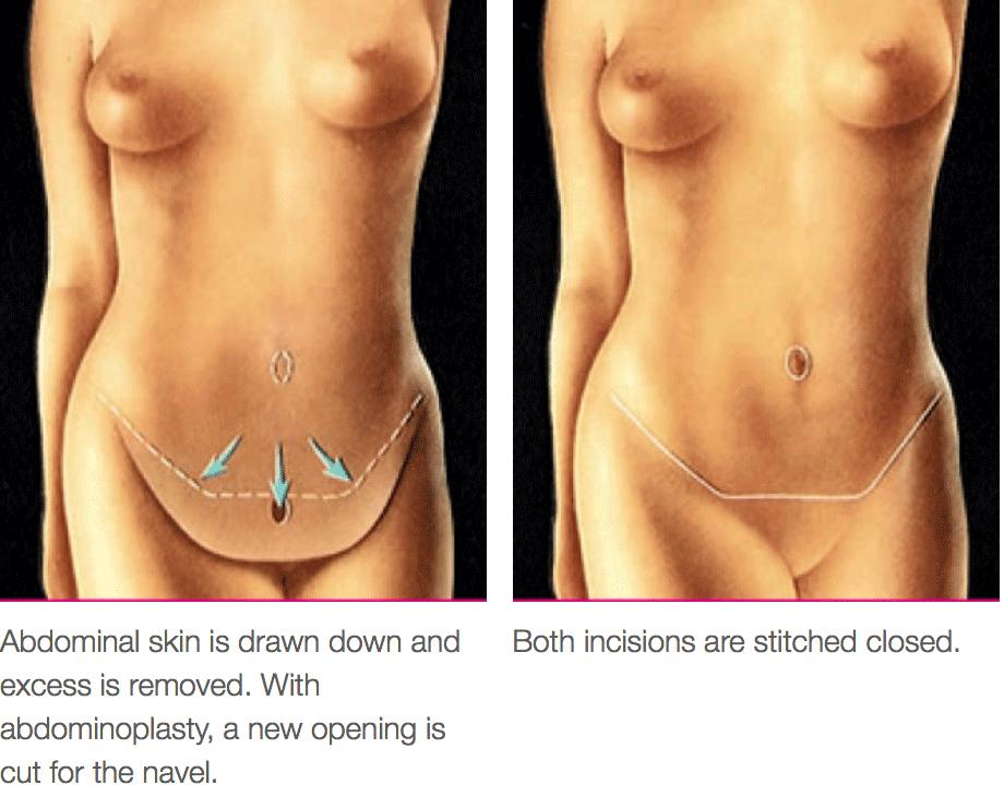 Tummy Tuck Procedure Diagram