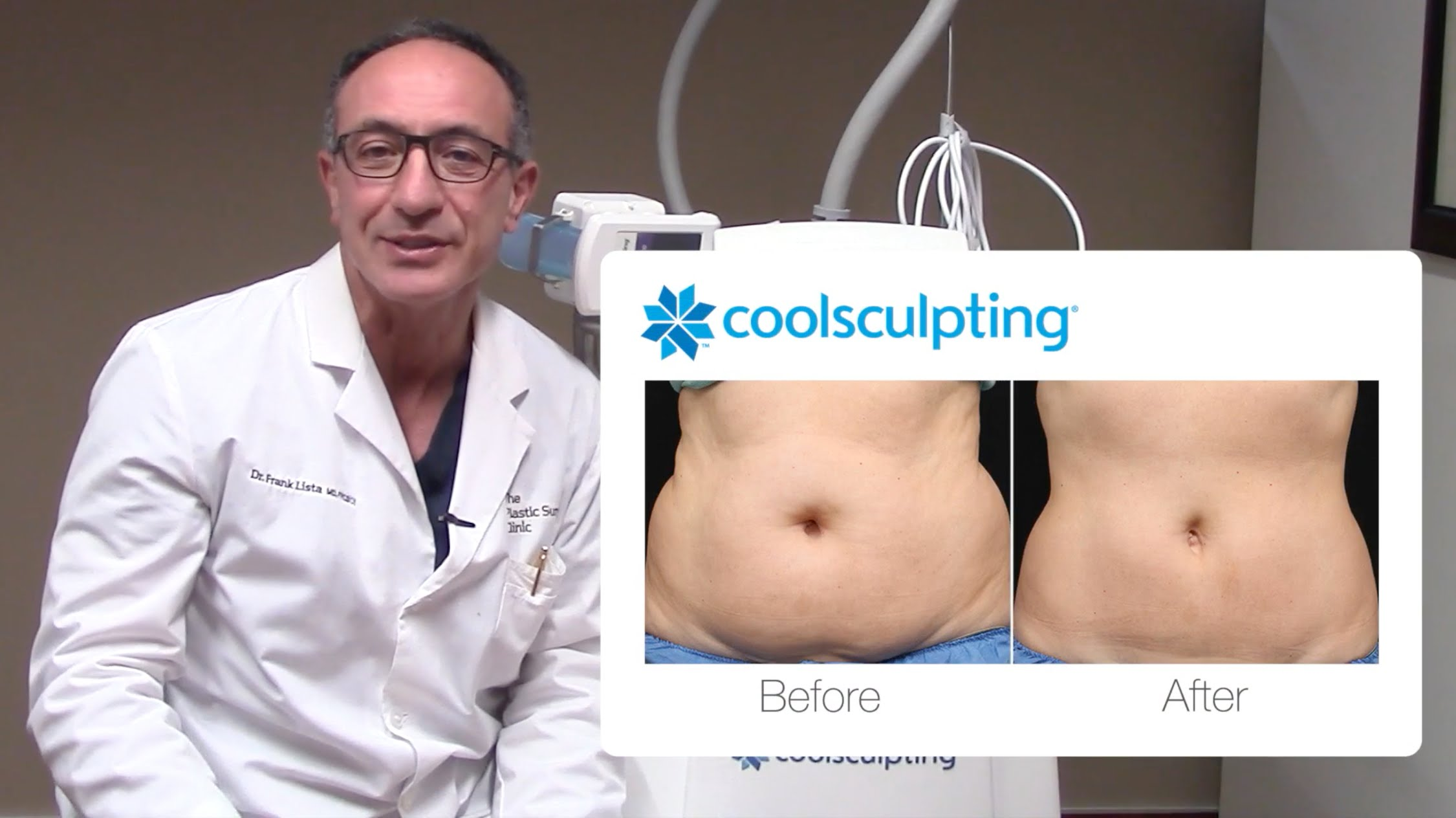 Dr. Lista on CoolSculpting