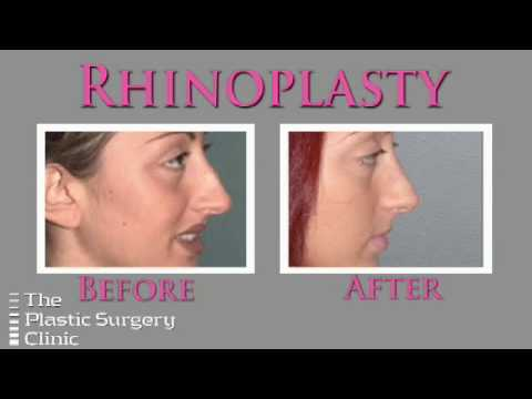 Dr. Lista on Rhinoplasty