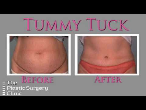 Dr. Lista on the Tummy Tuck Procedure