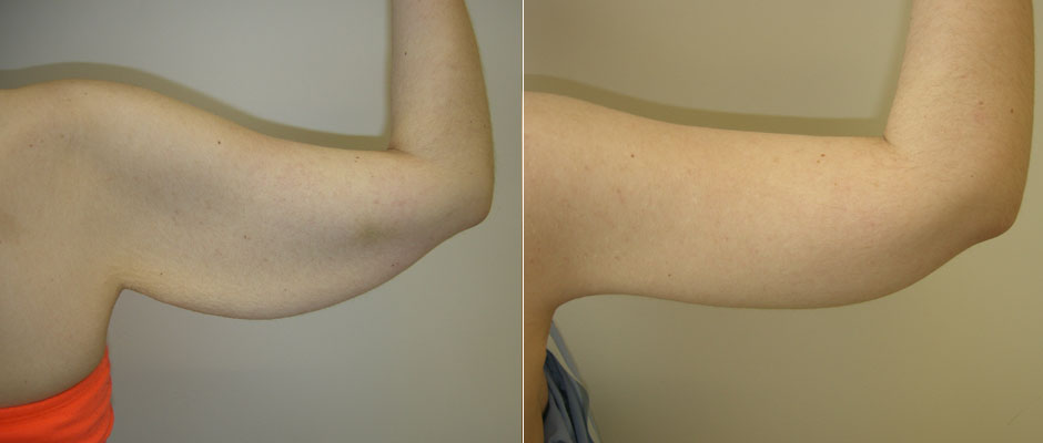 Body Contouring Before & After Photo