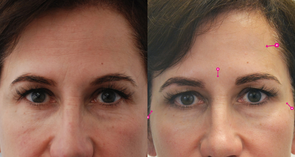Injections for Wrinkles Before & After Photo