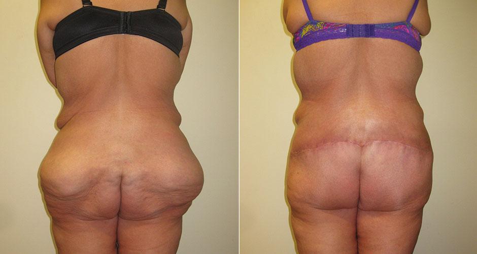 Brazilian Butt Lift Before & After Photo