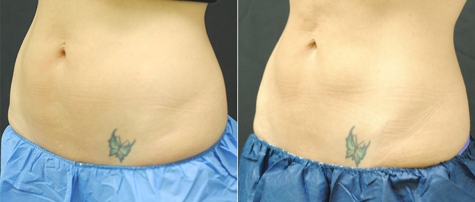 CoolSculpting for Women Before & After Photo