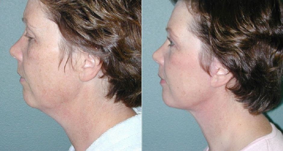 Face Lift Before & After Photo