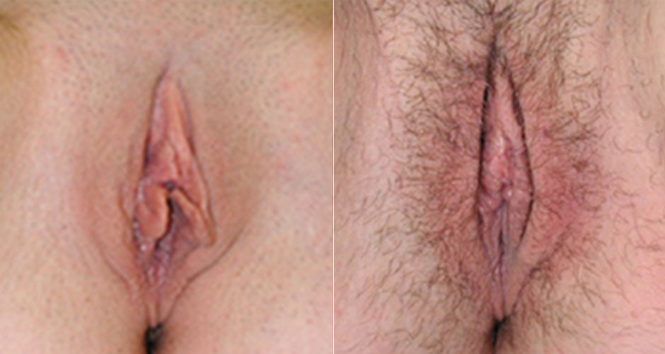 Labiaplasty Before & After Photo
