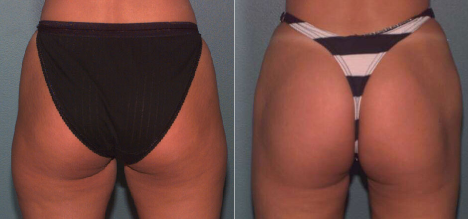 Liposuction Before & After Photo