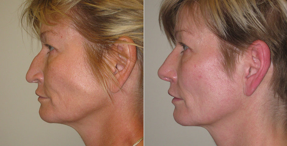Rhinoplasty Before & After Photo
