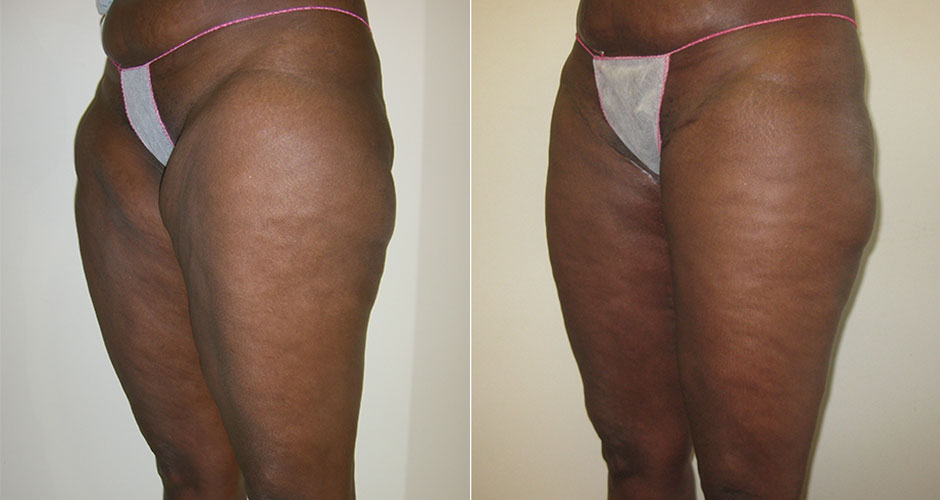Thigh Lift Before & After Photo