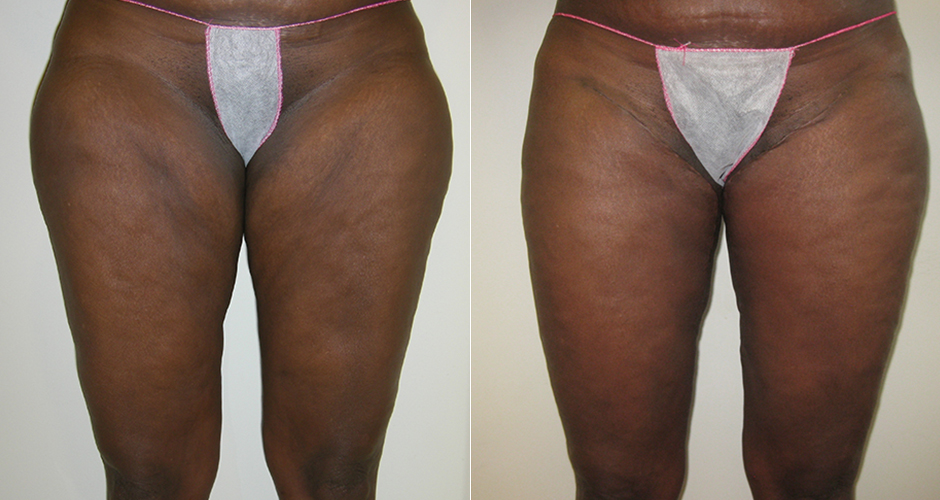 thigh-lift-front