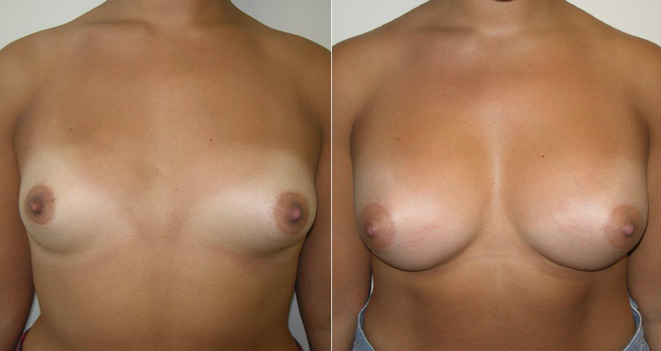 before and after breast augmentation with fat transfer