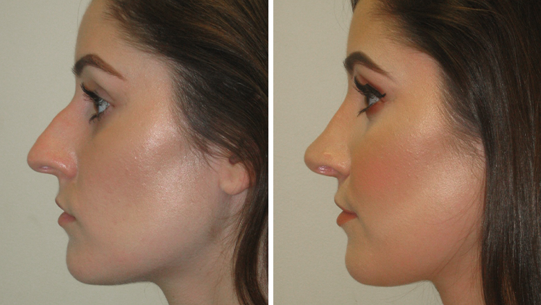 before and after nose job photos