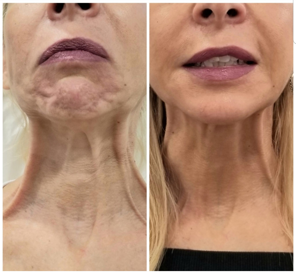 Neck Rejuvenation Before and After Photo