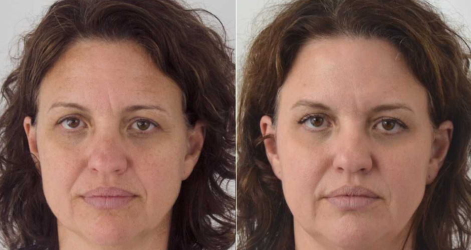 Miracle 10 Facial Peel Before and After Photo