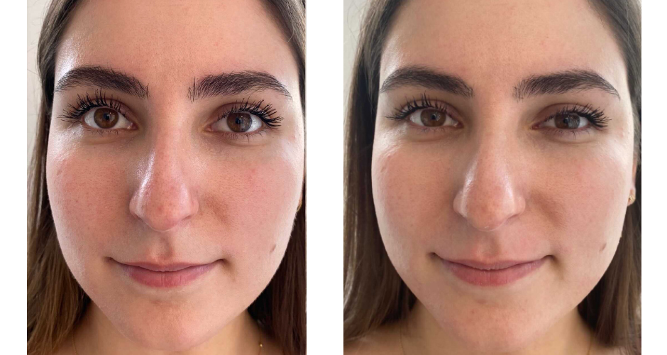Miracle 10 Peel Treatment Before and After Photo