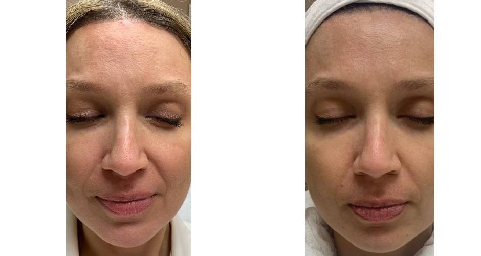 PRP/PRF Before and After Photos